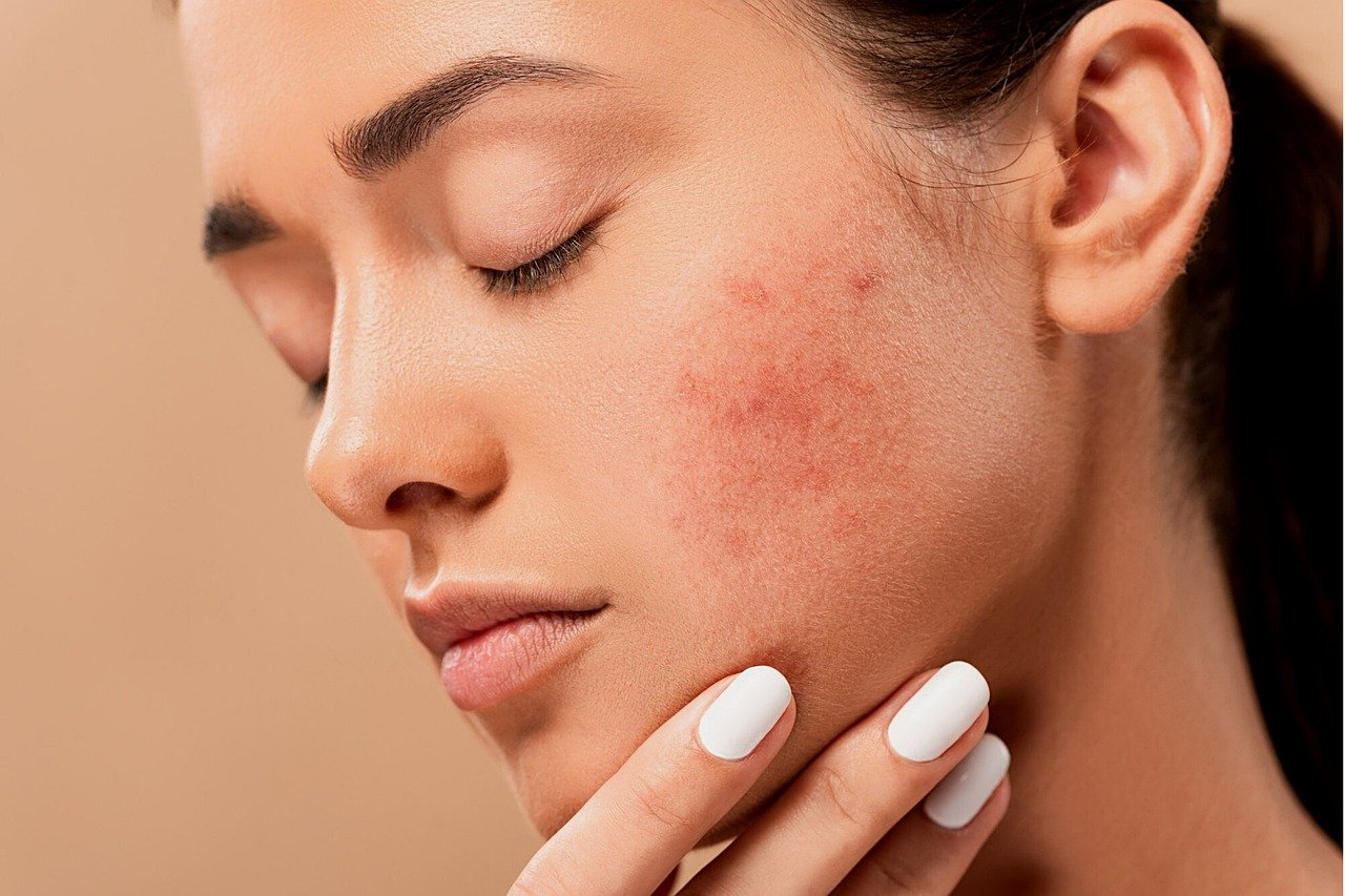 Treating Your Acne – Essential Tips And Tricks That You Will Surely Love